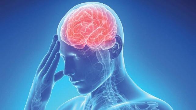 ictus-dolor-cabeza