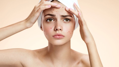 acne-cara-granos
