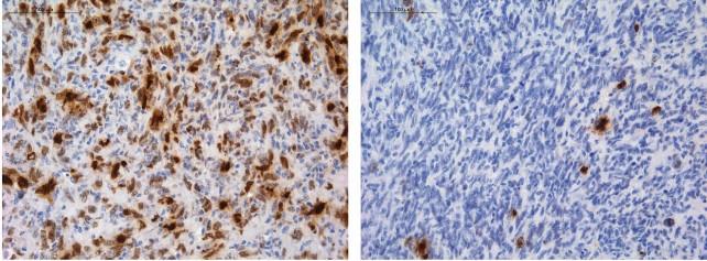 celulas-gliomas-cancer-quimioterapia